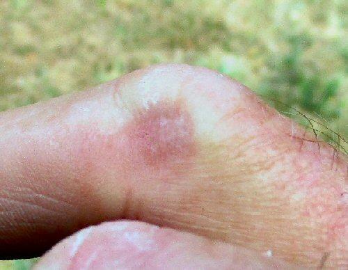 G33 finger.JPG